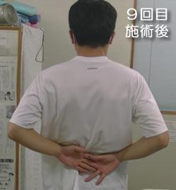 9回目施術後_腕を後ろに回した時の可動域