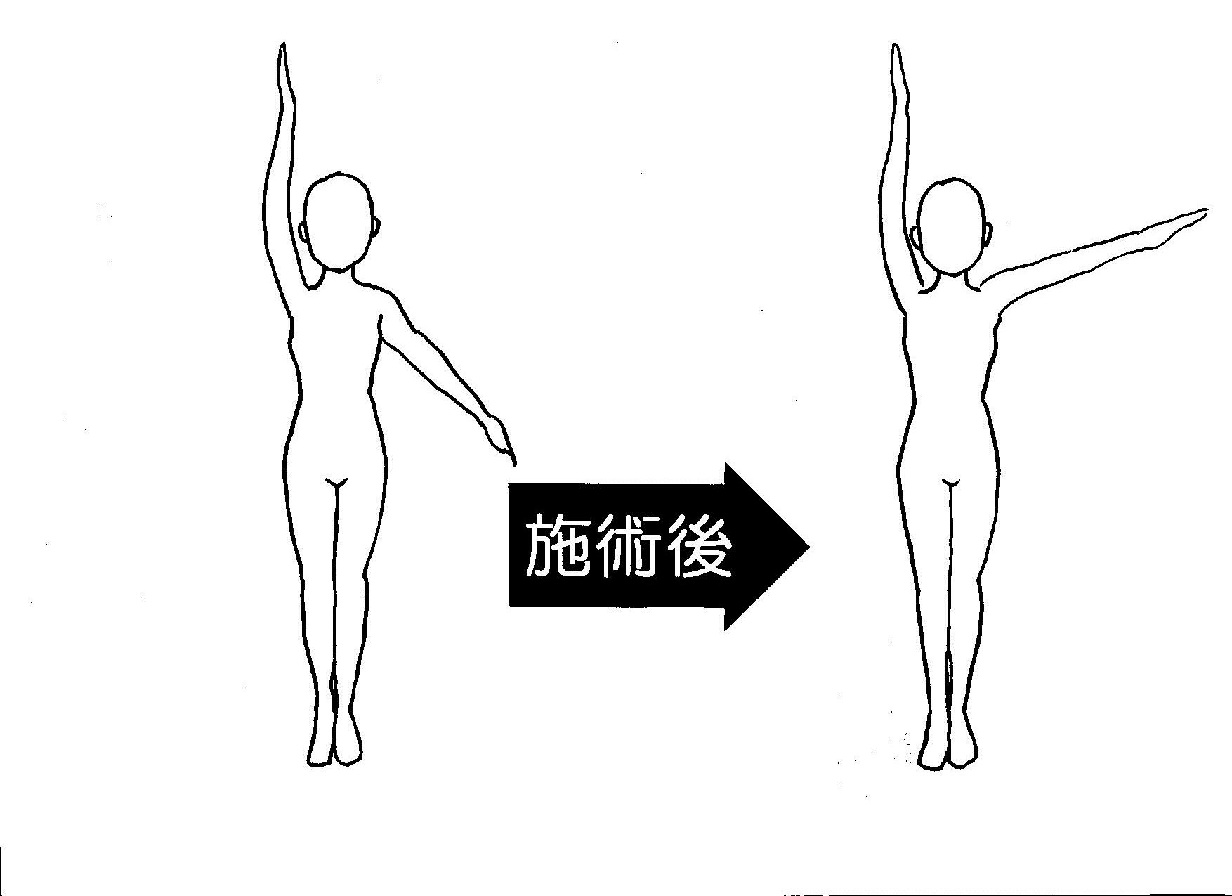 左腕挙上の角度の変化 初回
