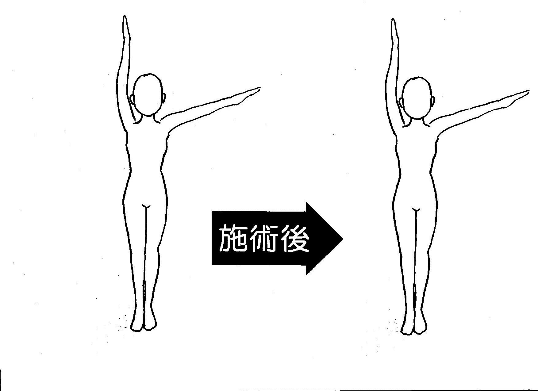 五十肩 左腕挙上の角度 2回目施術後
