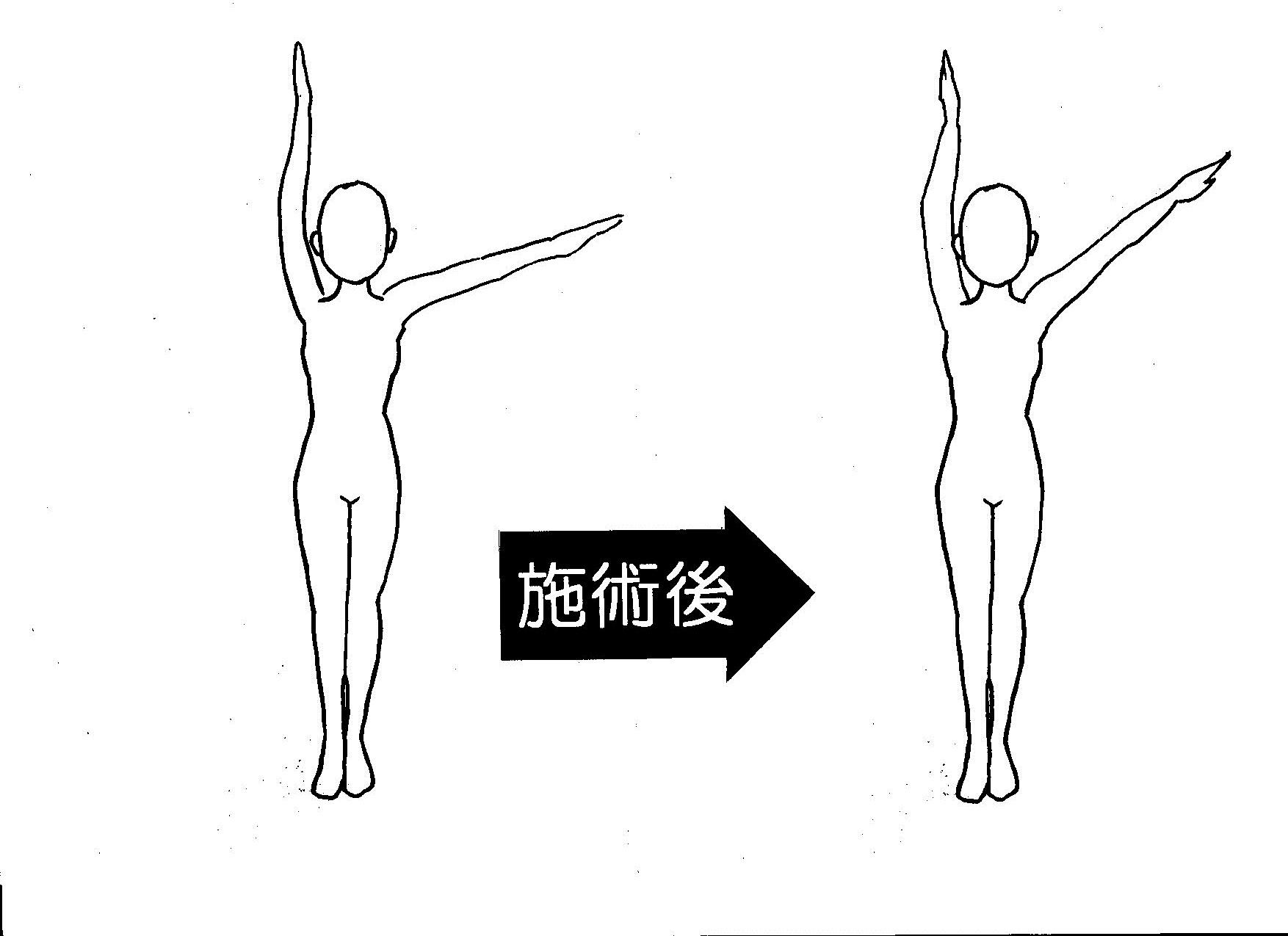 五十肩 左腕挙上の角度 4回目施術後