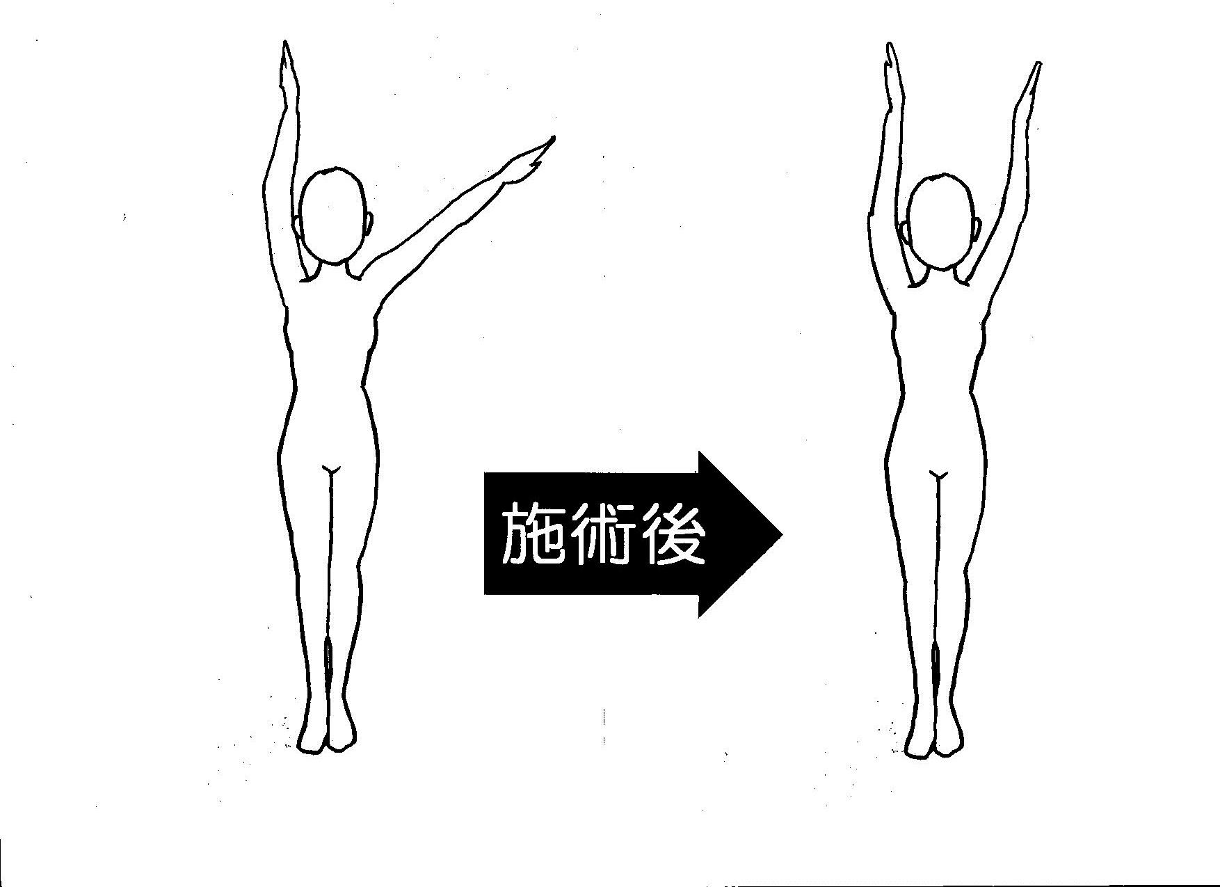 五十肩 左腕挙上の角度 5回目施術後