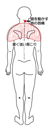 頭を動かすときの首痛と重く強い肩こりの図