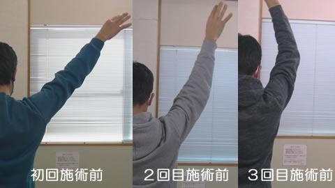 腕をあげる時の可動域変化_初回から3回目