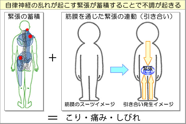 緊張の蓄積と筋膜を通じた引き合い現象(連動現象)が筋肉の過緊張(こり・痛み・しびれ)を生む