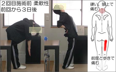 2回目施術前の柔軟性と痛みの出る位置の図