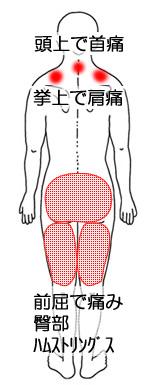臀部痛・肩首痛の20代男性