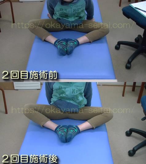 2回目施術前後の股関節の可動域変化スナップショット