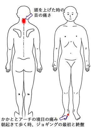 施術前の痛い箇所図(足底筋膜炎・首痛)