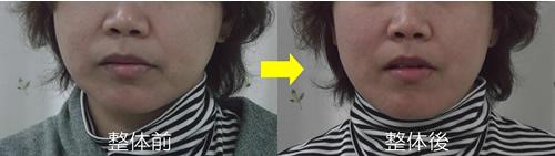 初回施術の前後の下あごのブレ:事例1